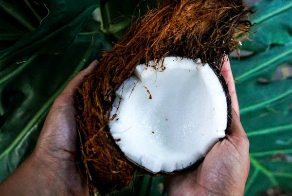 Coconut Oil is a really good way to treat cradle cap in babies
